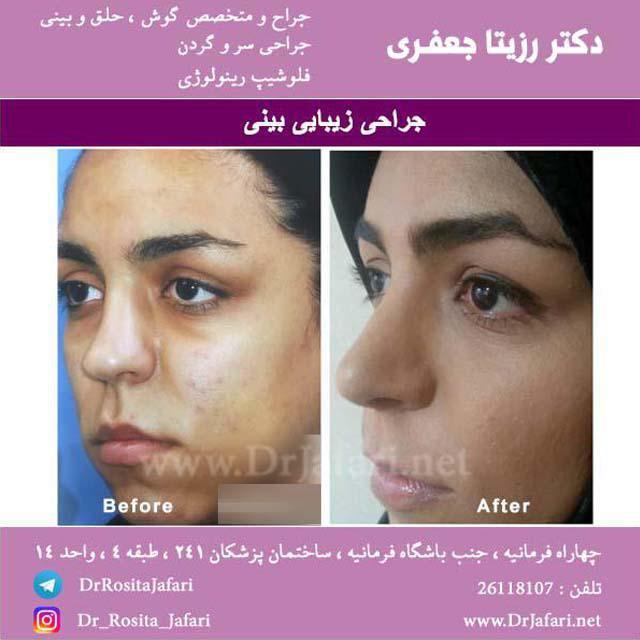 نمونه جراحی بینی توسط دکتر رزیتا جعفری