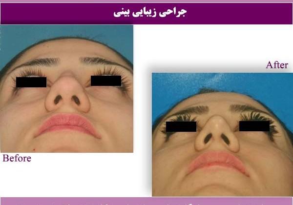 جراحی بینی 1