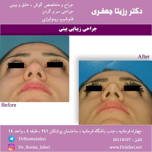 قبل و بعد رینوپلاستی بینی 1