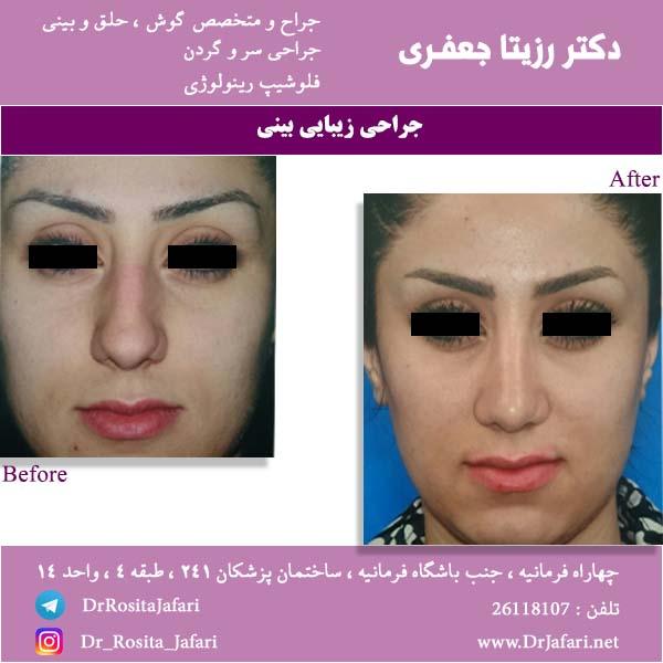 قبل و بعد جراحی رینوپلاستی بینی 2