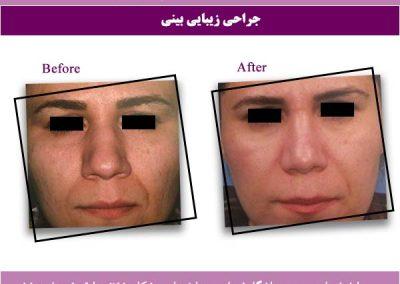 نتیجه جراحی بینی واقعی 3