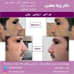 نمونه جراحی بینی مردانه 4