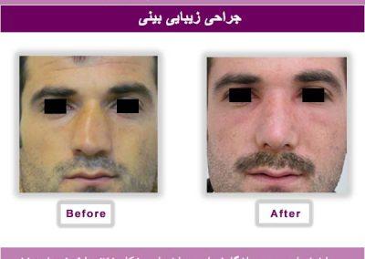 نتیجه جراحی بینی یکی از مراجعین آقا 6
