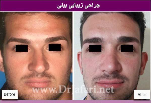 جراحی بینی11