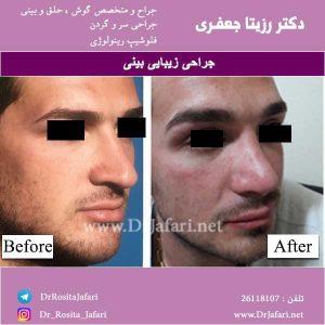 جراحی بینی12