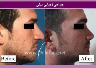 جراحی بینی13
