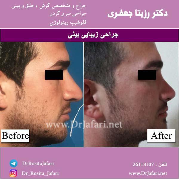 متخصص گوش و حلق و بینی خوب در تهران