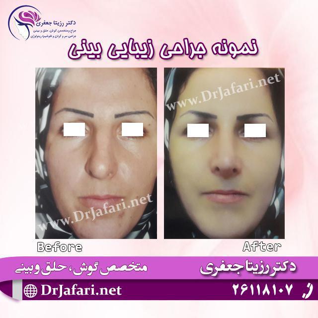 جراحی زیبایی بینی یکی از مراجعین خانم