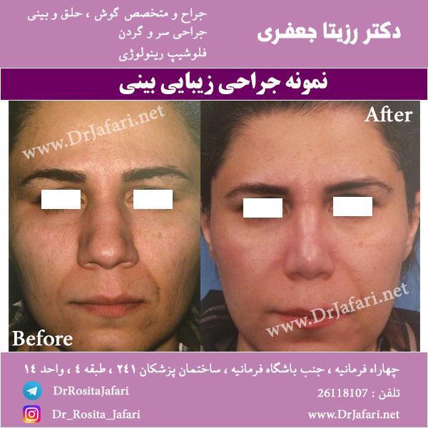 عکس قبل و بعد عمل بینی