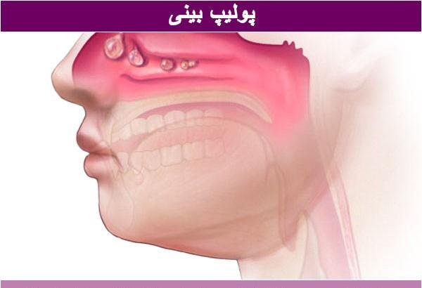 جراحی-پولیپ-بینی