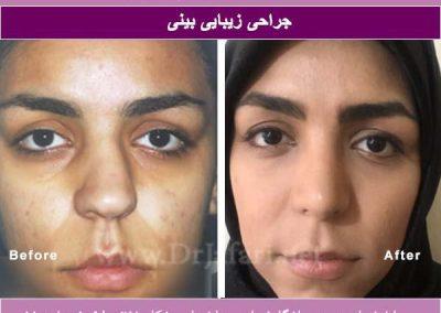 نمونه عمل بینی قبل و بعد