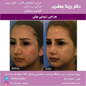عکس جراحی زیبایی بینی (10)