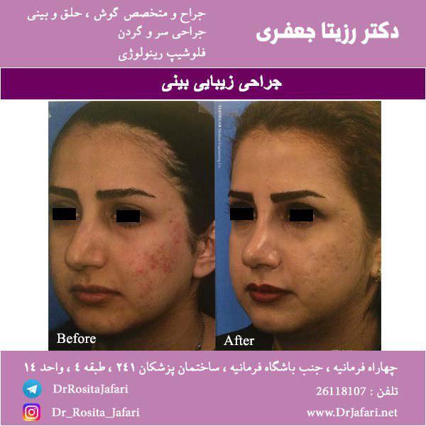 عکسی از جراحی زیبایی بینی (10)