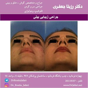 نمونه حقیقی جراحی زیبایی بینی (11)