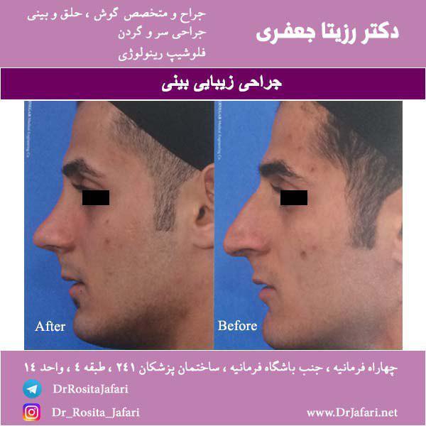قبل و بعد جراحی زیبایی بینی (13)