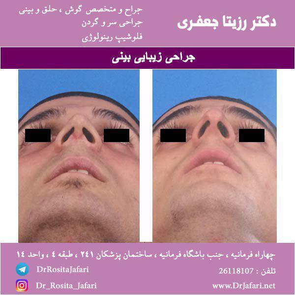 نمونه ای از جراحی زیبایی بینی (14)