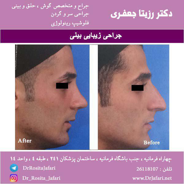 نتیجه جراحی زیبایی بینی (15)