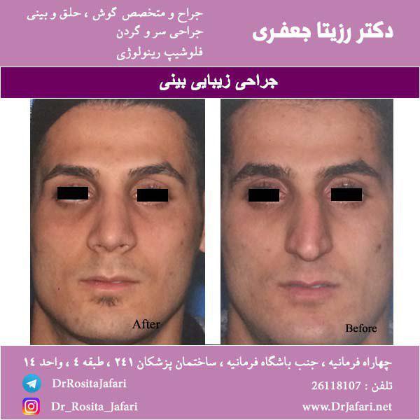 نمونه جراحی زیبایی بینی (16)