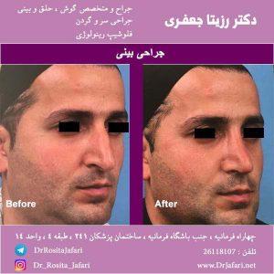 قبل و بعد جراحی زیبایی بینی (17)