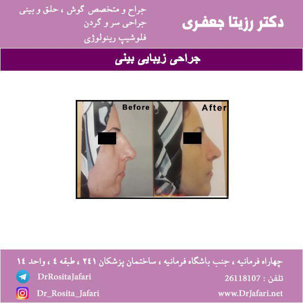 نمونه عمل رینوپلاستی بینی (2)