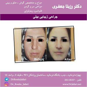 عکس جراحی زیبایی بینی (3)