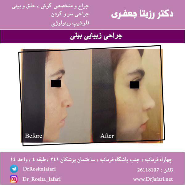 عکس جراحی زیبایی بینی از نیمرخ (4)