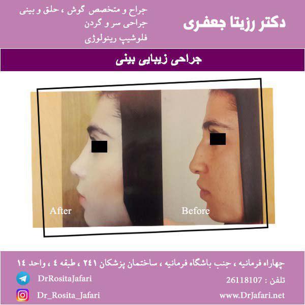 نمونه جراحی رینوپلاستی بینی (5)