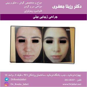 عکس جراحی زیبایی بینی (6)