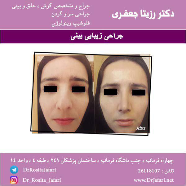 قبل و بعد عمل زیبایی بینی (7)