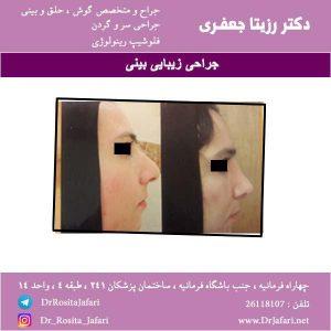 عکس جراحی زیبایی بینی (7)