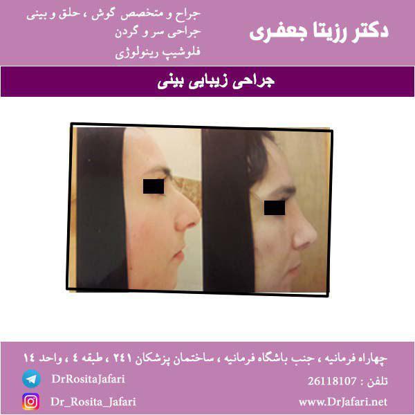 نمونه واقعی جراحی زیبایی بینی (7)