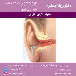 عفونت گوش خارجی