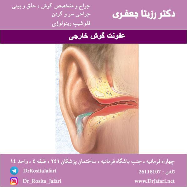 عفونت کردن گوش خارجی
