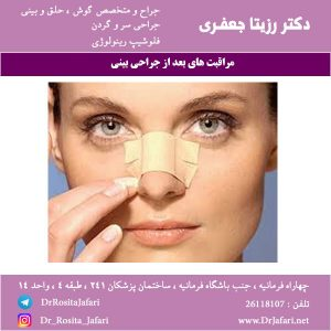 مراقبت های لازم بعد از جراحی بینی