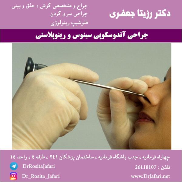 جراحی آندوسکوپی سینوس و رینوپلاستی