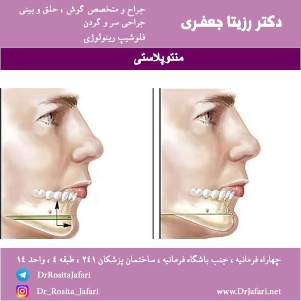 جراحی منتوپلاستی