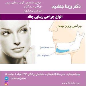 انواع مختلف جراحی زیبایی چانه