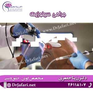 جراحی-سینوزیت