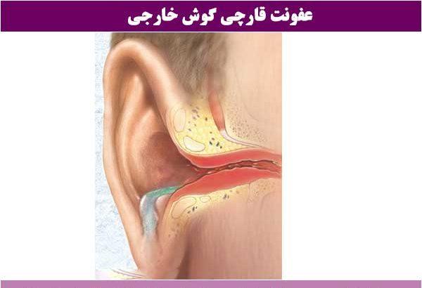 عفونت-گوش-خارجی