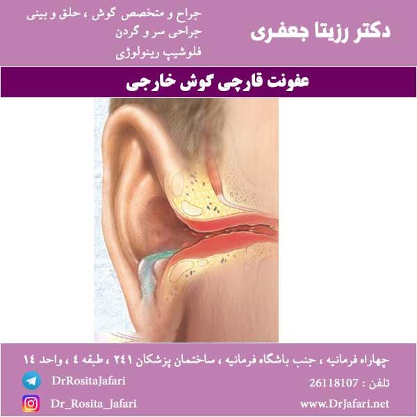 عفونت قارچی گوش خارجی