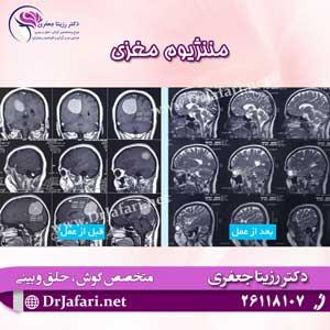 مننژیوم مغزی