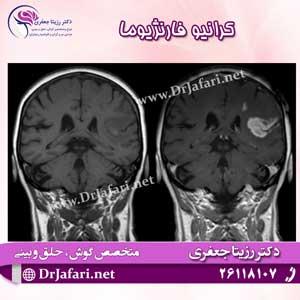 تومور کرانیو فارنژیوما