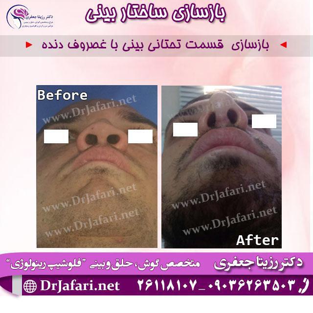 بازسازی قسمت تحتانی بینی