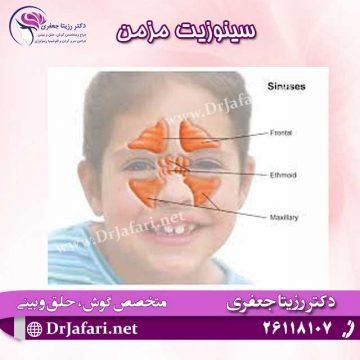 سینوزیت مزمن