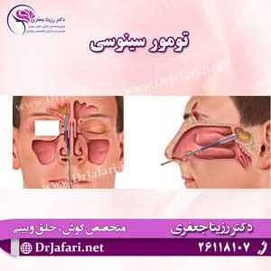 تومور-سینوسی