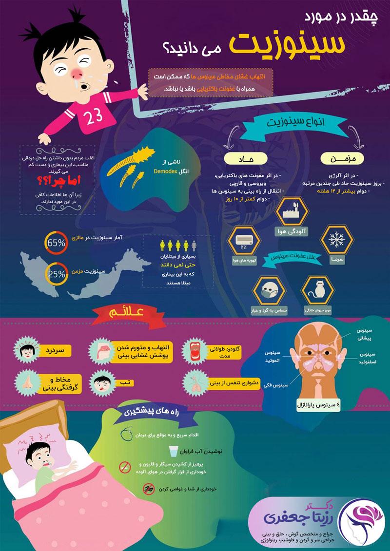 سینوزیت چیست