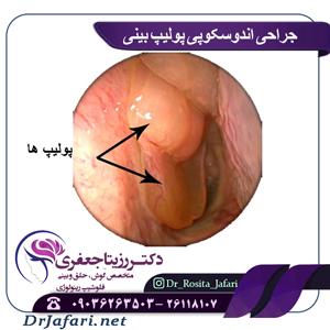 جراحی اندوسکوپی پولیپ بینی