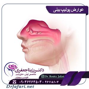 عوارض پولیپ بینی