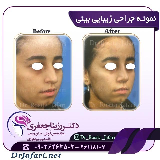 نمونه ای از جراحی زیبایی بینی