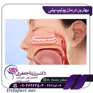 درمان پولیپ بینی